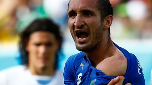 Photo: Italy defender Giorgio Chiellini shows the shoulder he used to attack Uruguay forward Luis Suarez.