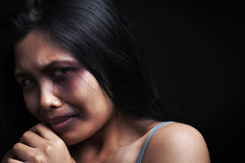 Photo: A victim of domestic violence. (Courtesy Batchwilliams.com)